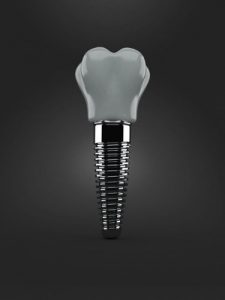 Choose the best prosthodontist in San Diego for dental implants.
