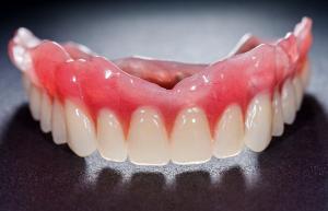Top denture arch