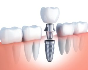 Implant post, abutment, crown