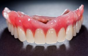 Model for upper dentures in La Mesa.